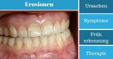 Erosionen - Ursachen, Symptome, Früherkennung und Therapie