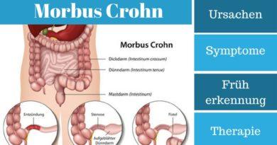 Morbus Crohn - Ursachen, Symptome, Früherkennung und Therapie