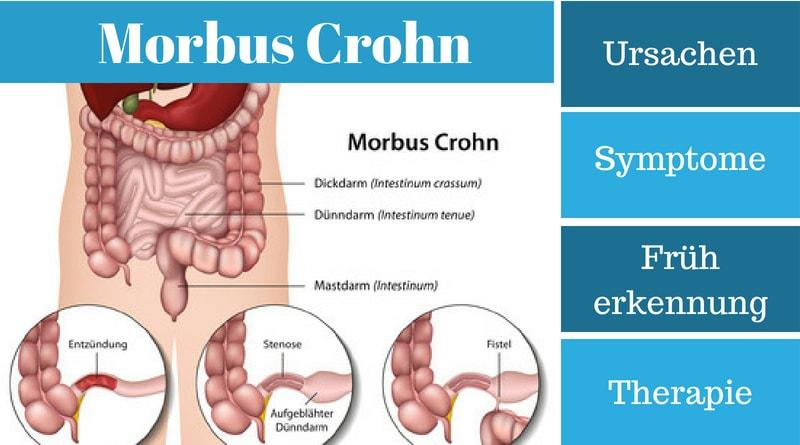 Morbus Crohn – Ursachen, Symptome und Therapie