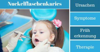 Nuckelflaschenkaries - Ursachen, Symptome, Früherkennung und Therapie