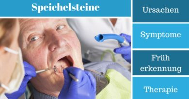 Speichelsteine – Ursachen, Symptome, Früherkennung und Therapie