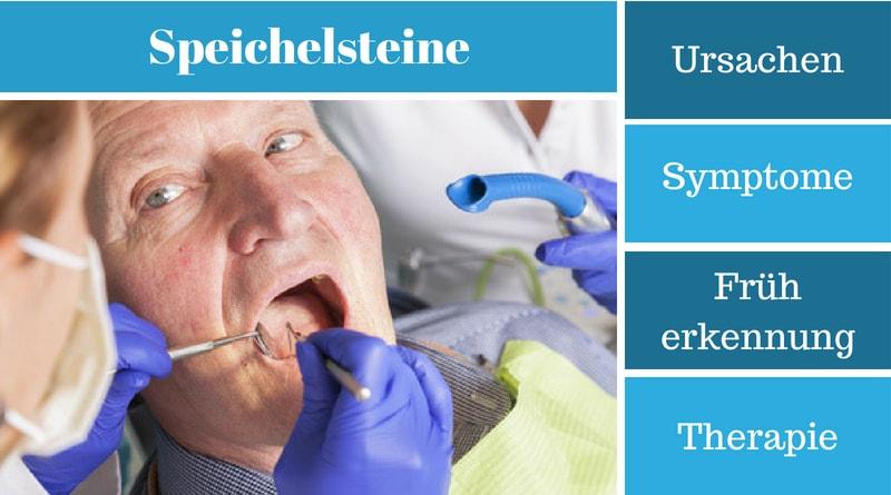 Speichelsteine - Ursachen, Symptome, Früherkennung und Therapie