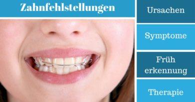 Zahnfehlstellungen - Ursachen, Symptome, Früherkennung und Therapie