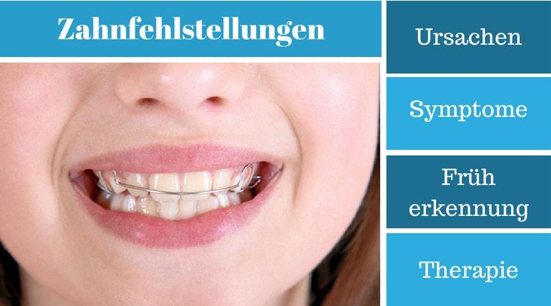 Zahnfehlstellungen – Ursachen, Symptome, Früherkennung und Therapie