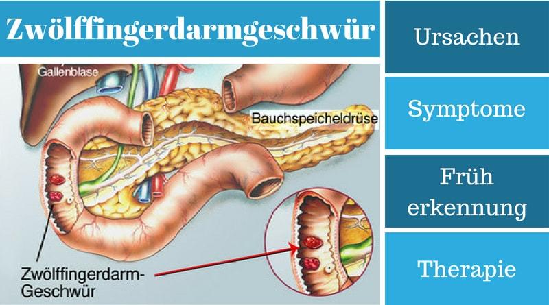 Zwölffingerdarmgeschwür - Ursachen, Symptome, Früherkennung und Therapie